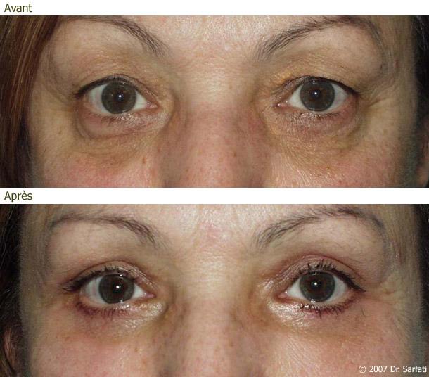 Fabuleux Blépharoplastie ou Chirurgie des paupières XR65
