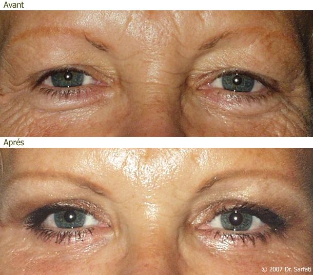 Le masque pour la personne pour 40 peau sèche