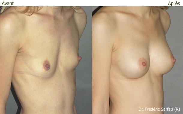 Augmentation mammaire filling graisse