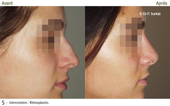 rhinoplastie photos avant apr s chirurgie du nez. Black Bedroom Furniture Sets. Home Design Ideas