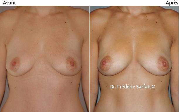 avant après filling des seins