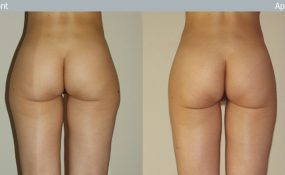 Lipoaspiration cuisse & genoux