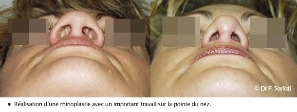 Tout savoir sur la rhinoplastie chirurgie esth tique az for Interieur du nez