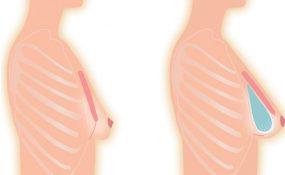 Augmentation mammaire : les positions d'un Implant Mammaire
