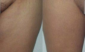Lifting des cuisses ou cruroplastie