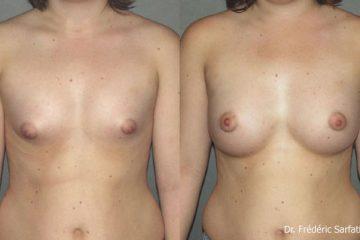 Augmentation mammaire : ce qu'il faut savoir sur l'intervention